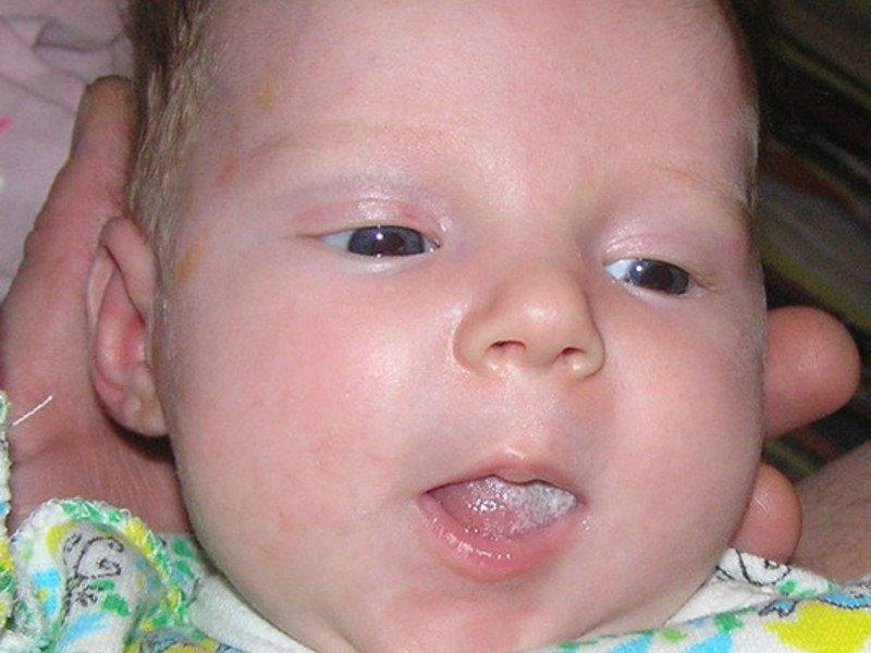 Белый налет у ребенка на языке - Статьи - Дети 3-7 65