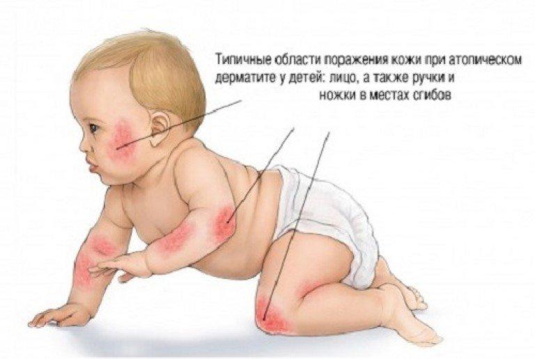 зоны поражения дерматитом у грудничка