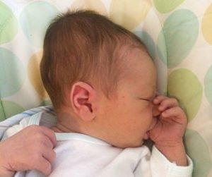 кефалогематома у новорожденного