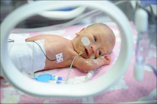 выхаживание недоношенного ребенка