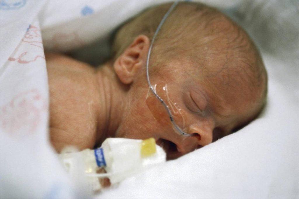 признаки сепсиса у новорожденных