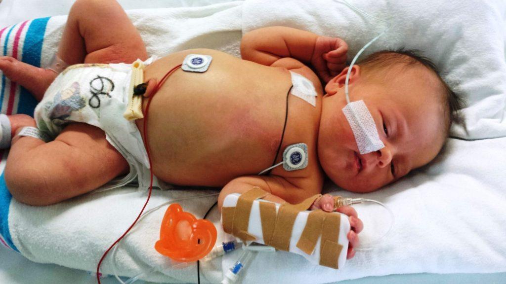 лечение сепсиса у новорожденных