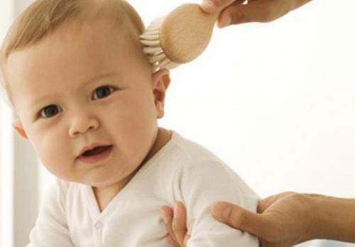 вычесывание чешуек на голове у грудничка