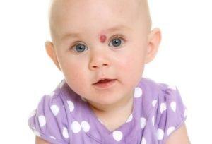 лечение гемангиомы у младенцев