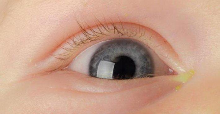 почему гноятся глазки у грудничка
