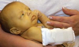 урсольфак против желтушки новорожденного