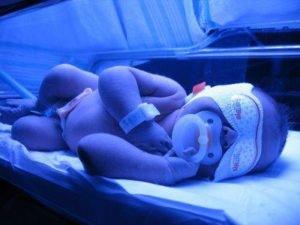 билирубин у новорожденных лечение