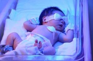 повышены билирубины у новорожденного
