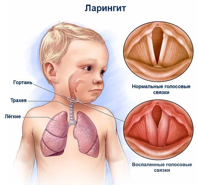 ларингит у новорожденного