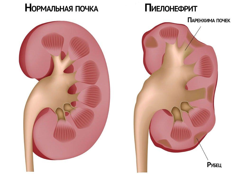что такое пиелонефрит у грудничка